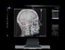 radiologie-selfie-dent-buzau